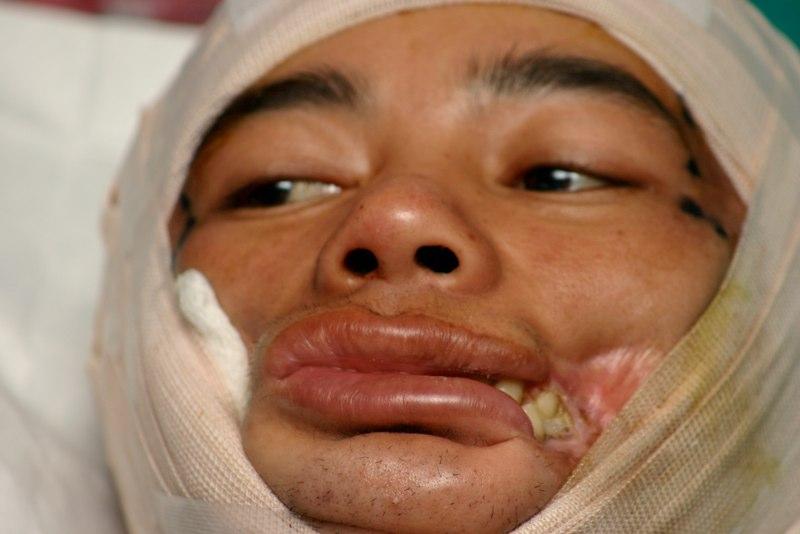 Na de eerste operatie