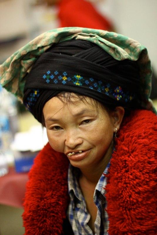 NOMA patiente uit Noord Laos